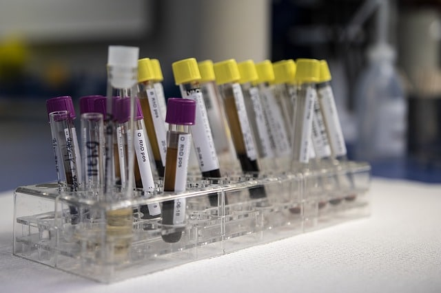 analisi-sangue-fecondazione-omologa-o-eterologa-la-mia-storia